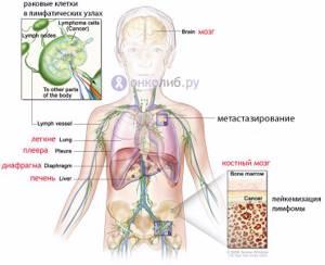 Причины и симптоматика артрита шеи