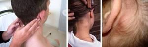 лимфоузлы около уха воспаление симптомы лечение