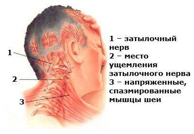 миогелоз шеи симптомы и лечение