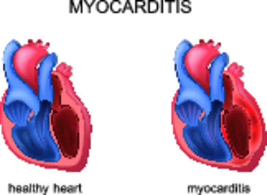 миокардит у ребенка симптомы и лечение