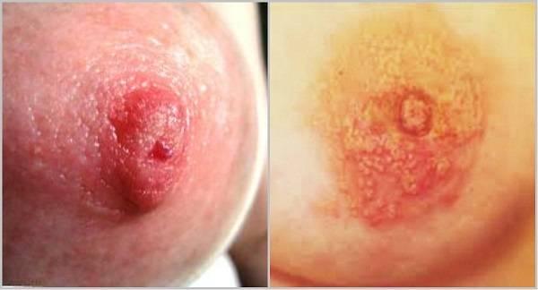 молочница в грудных протоках симптомы и лечение