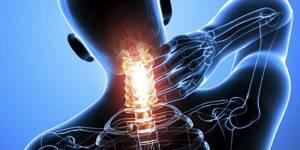 Взаимосвязь остеохондроза и артериального давления ...