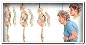 остеопороз шеи симптомы и лечение