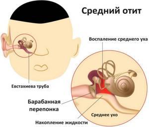отит симптомы лечение у ребенка