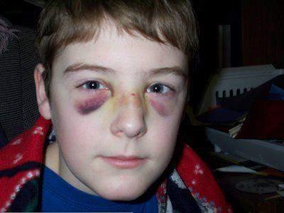 перелом носа у ребенка симптомы лечение