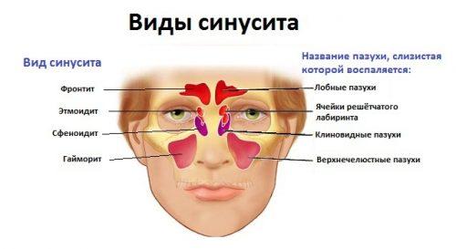 полисинусит у ребенка симптомы лечение