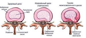 протрузия дисков шейного отдела симптомы лечение причины