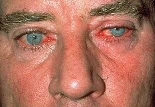 розацеа у ребенка симптомы и лечение