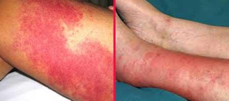 рожистое воспаление голени симптомы и лечение