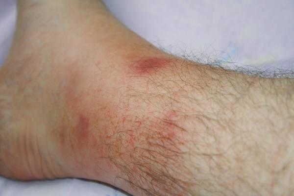 рожистое воспаление голеностопа симптомы и лечение