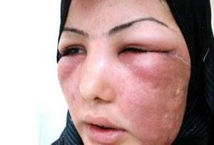 рожистое воспаление носа симптомы и лечение