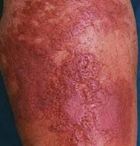 рожистое воспаление стопы симптомы и лечение