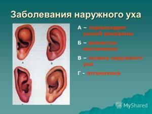 рожистое воспаление уха симптомы и лечение