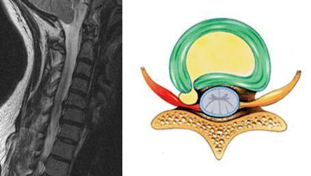 шейный и грудной остеохондроз симптомы и лечение медикаментами