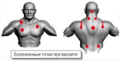 шейный миозит симптомы и лечение в домашних условиях