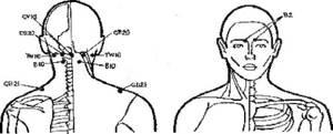 шейный остеохондроз симптомы и лечение дома массаж