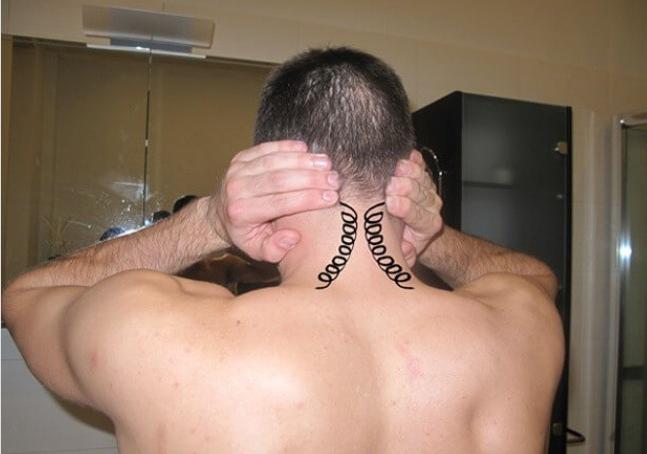 шейный остеохондроз симптомы и лечение ком в горле