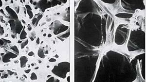 шейный остеопороз симптомы лечение в домашних условиях
