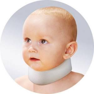 симптом короткой шеи у новорожденного лечение