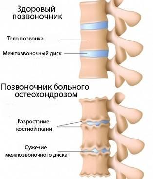 симптомы шейного и грудного остеохондроза профилактика и лечение