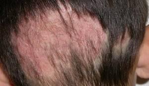 стригущий лишай у человека на голове симптомы лечение