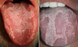 воспаление корня языка симптомы и лечение