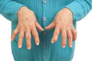 воспаление лучезапястного сустава симптомы и лечение