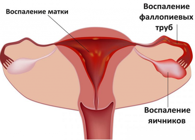 воспаление матки симптомы и лечение свечами