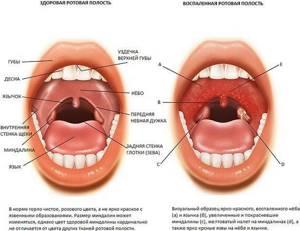 воспаление миндалин лечение симптомы и лечение