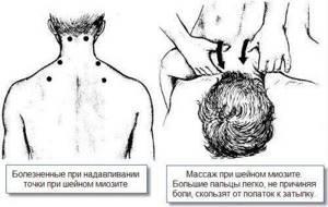 воспаление мышц плеча симптомы и лечение