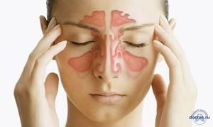 воспаление околоносовых пазух симптомы и лечение