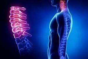 воспаление остеохондроза шейного отдела симптомы лечение