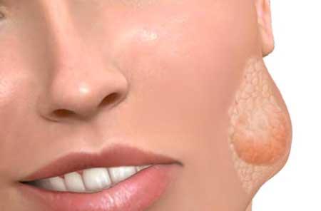 воспаление подчелюстной железы симптомы и лечение