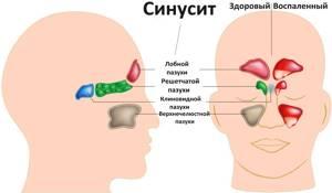 воспаление придаточных пазух носа симптомы лечение