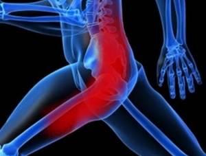 Перелом седалищной кости лечение