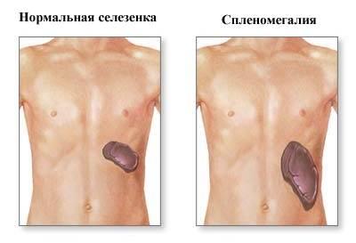 воспаление селезенки симптомы и лечение диета
