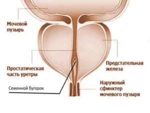 воспаление семенного бугорка симптомы и лечение
