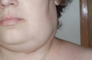 воспаление шейных желез симптомы и лечение