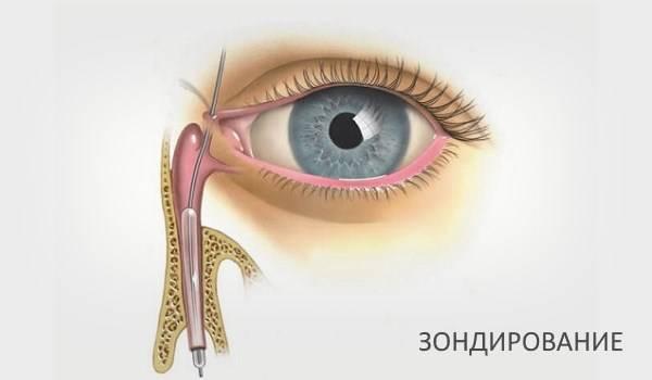 воспаление слезного канала симптомы и лечение
