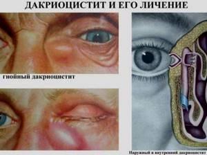 воспаление слезного мешка симптомы и лечение