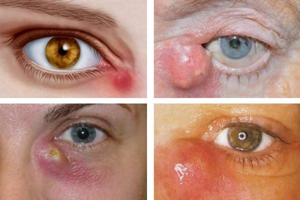 воспаление слезного мясца симптомы и лечение