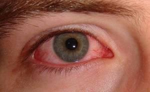 воспаление слезной железы симптомы и лечение