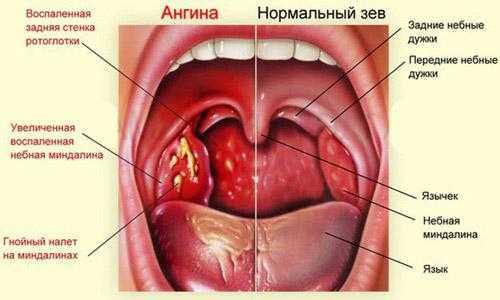 воспаление слизистой оболочки гортани симптомы лечение
