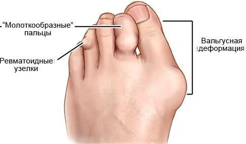 воспаление сустава стопы симптомы и лечение