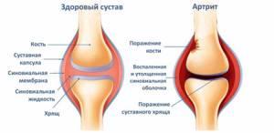 воспаление суставов лечение симптомы и лечение