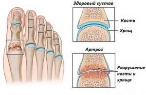 воспаление связок стопы симптомы и лечение