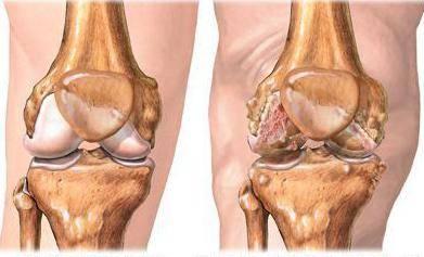 воспаление связок суставов симптомы и лечение