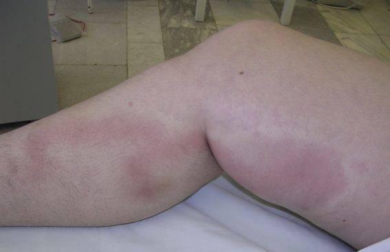 воспаление вены на ноге симптомы лечение