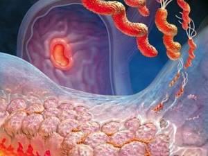воспаление жкт симптомы лечение народными средствами