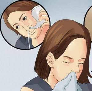 аденоидный кашель у ребенка симптомы и лечение